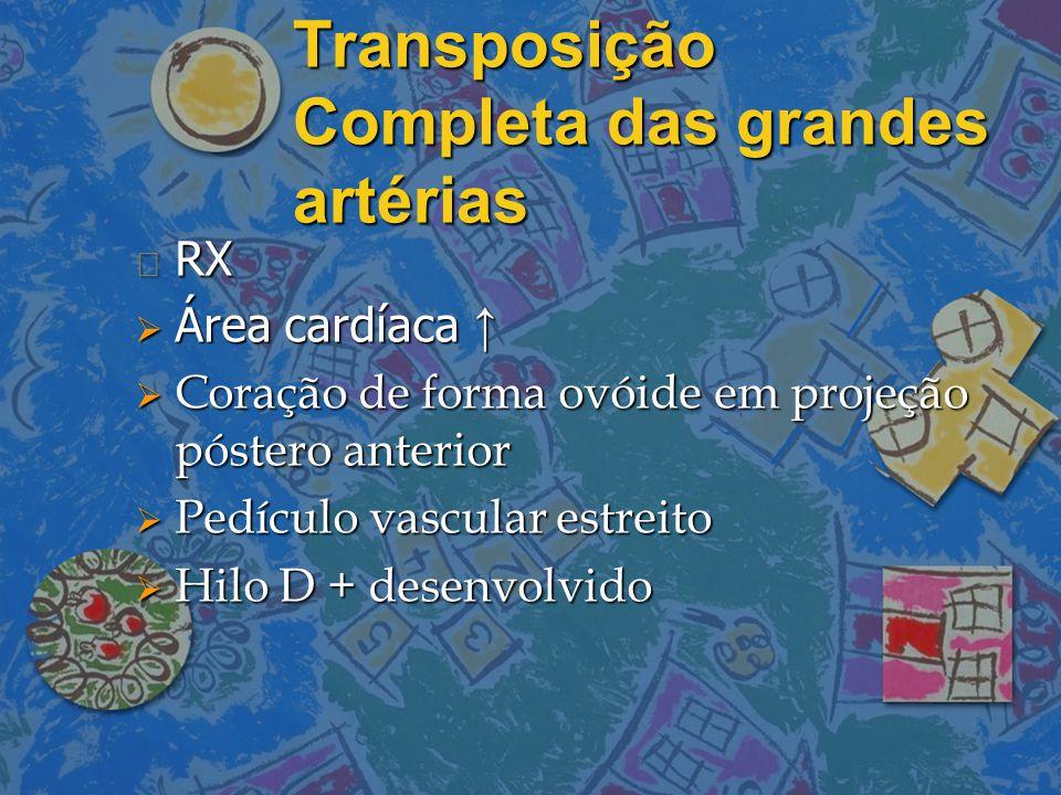 Transposição Completa das grandes artérias n RX  Área cardíaca ↑  Coração de forma ovóide em projeção póstero anterior  Pedículo vascular estreito