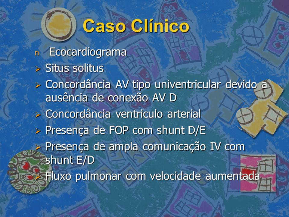 Caso Clínico n Ecocardiograma  Situs solitus  Concordância AV tipo univentricular devido a ausência de conexão AV D  Concordância ventriculo arteri