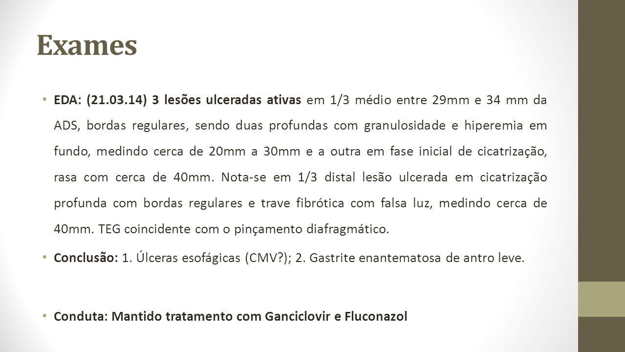 Exames EDA: (21.03.14) 3 lesões ulceradas ativas em 1/3 médio entre 29mm e 34 mm da ADS, bordas regulares, sendo duas profundas com granulosidade e hi