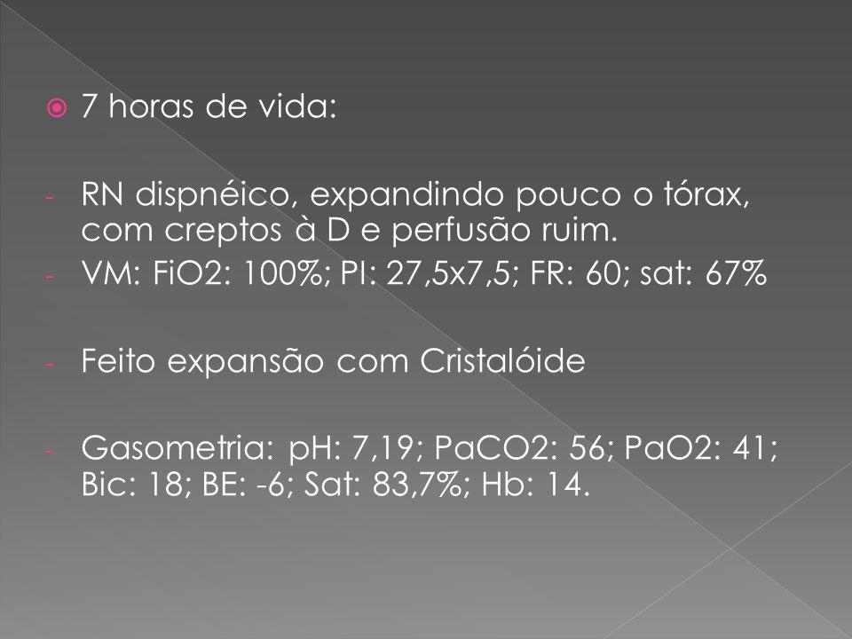  7 horas de vida: - RN dispnéico, expandindo pouco o tórax, com creptos à D e perfusão ruim. - VM: FiO2: 100%; PI: 27,5x7,5; FR: 60; sat: 67% - Feito