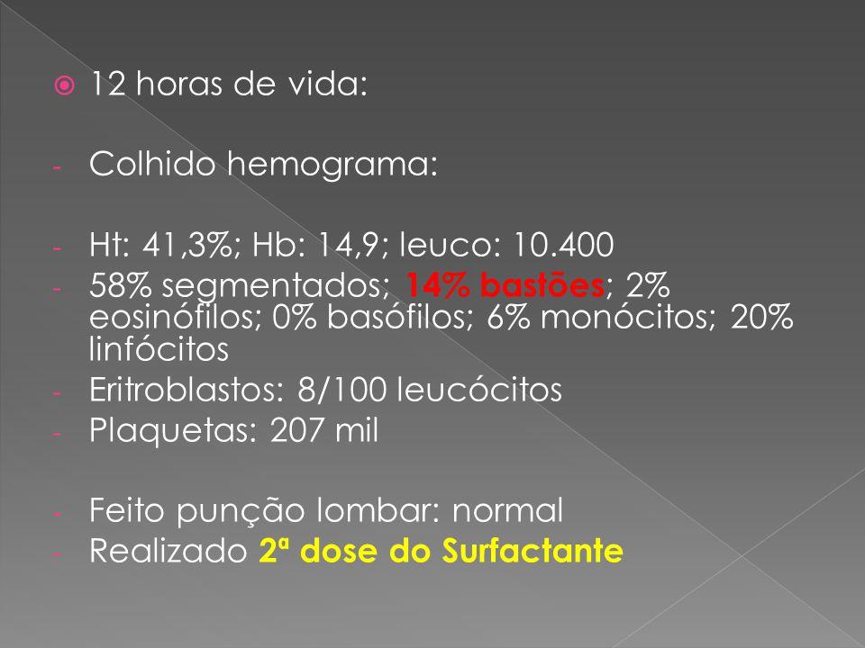  12 horas de vida: - Colhido hemograma: - Ht: 41,3%; Hb: 14,9; leuco: 10.400 - 58% segmentados; 14% bastões ; 2% eosinófilos; 0% basófilos; 6% monóci