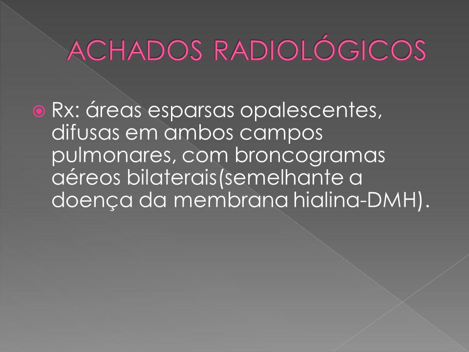  Rx: áreas esparsas opalescentes, difusas em ambos campos pulmonares, com broncogramas aéreos bilaterais(semelhante a doença da membrana hialina-DMH)