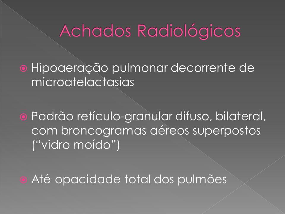 """ Hipoaeração pulmonar decorrente de microatelactasias  Padrão retículo-granular difuso, bilateral, com broncogramas aéreos superpostos (""""vidro moído"""