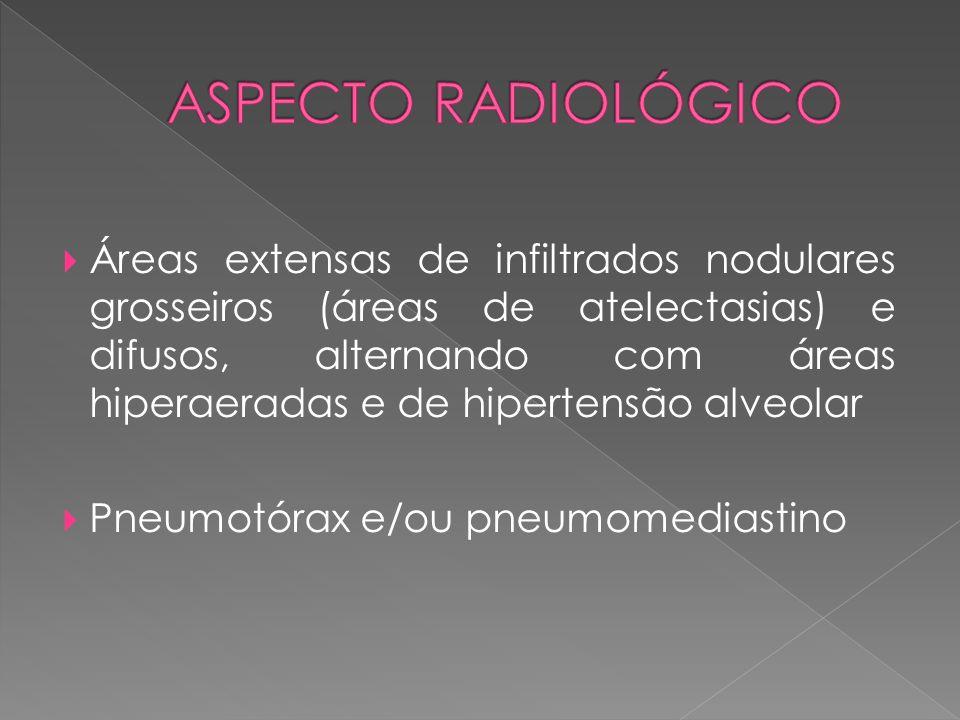  Áreas extensas de infiltrados nodulares grosseiros (áreas de atelectasias) e difusos, alternando com áreas hiperaeradas e de hipertensão alveolar 