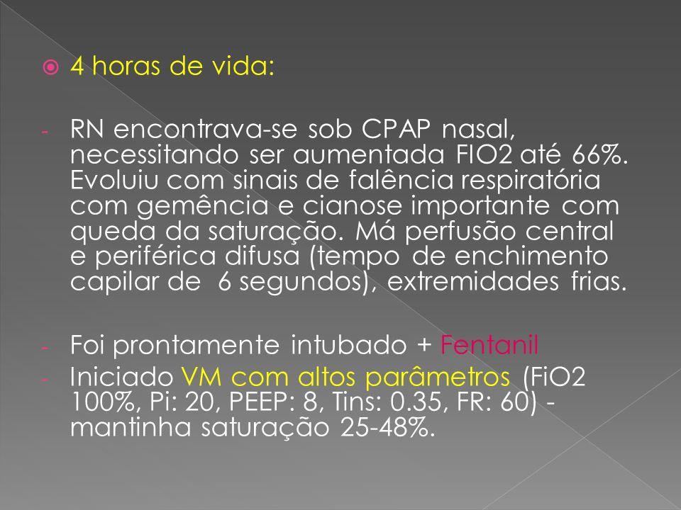  4 horas de vida: - RN encontrava-se sob CPAP nasal, necessitando ser aumentada FIO2 até 66%. Evoluiu com sinais de falência respiratória com gemênci