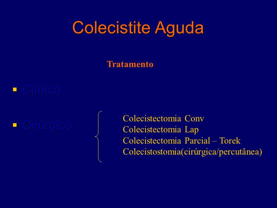 Colecistite Aguda  Clínico  Cirúrgico Colecistectomia Conv Colecistectomia Lap Colecistectomia Parcial – Torek Colecistostomia(cirúrgica/percutânea)