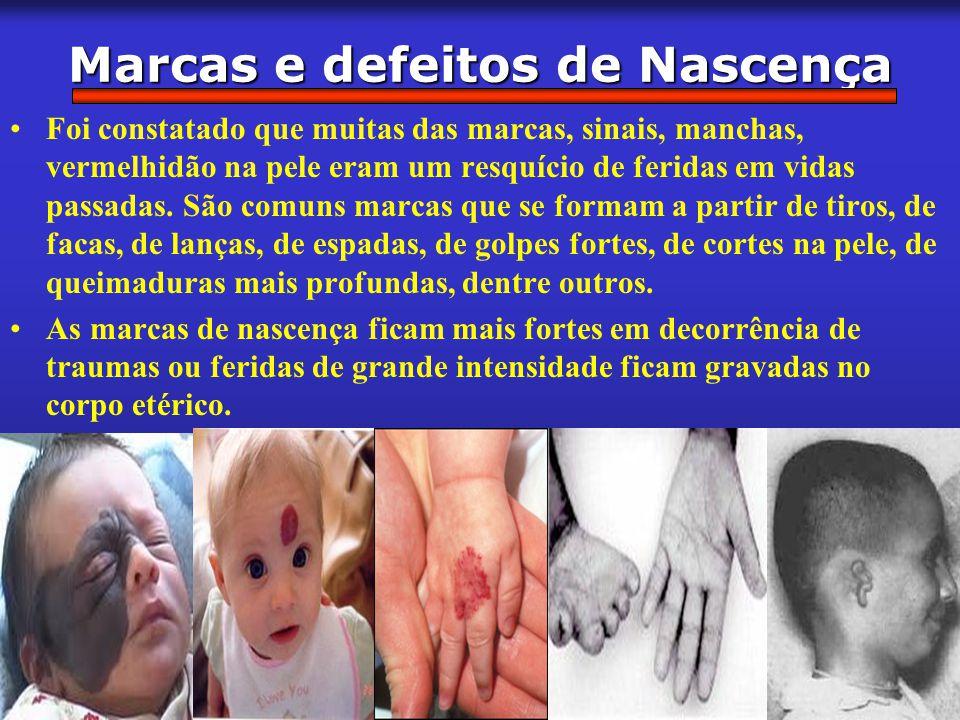 22 de 14 Marcas e defeitos de Nascença Foi constatado que muitas das marcas, sinais, manchas, vermelhidão na pele eram um resquício de feridas em vida