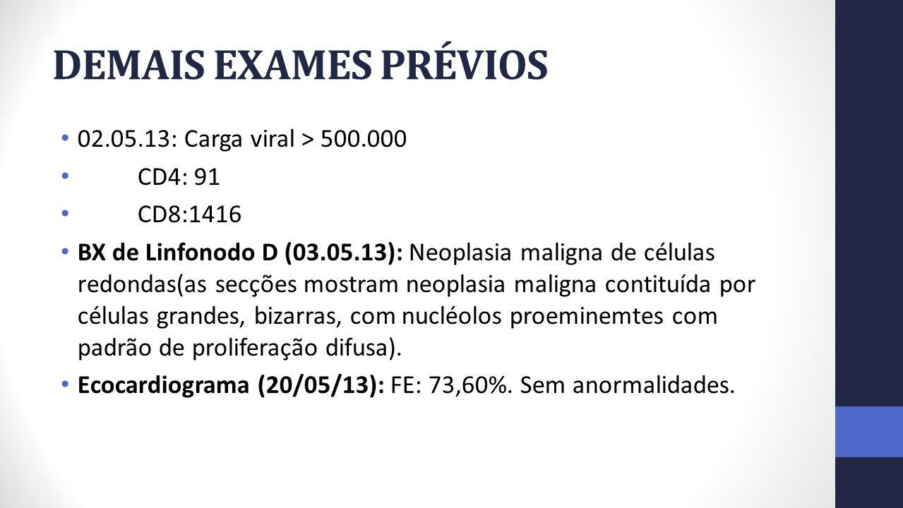 DEMAIS EXAMES PRÉVIOS 02.05.13: Carga viral > 500.000 CD4: 91 CD8:1416 BX de Linfonodo D (03.05.13): Neoplasia maligna de células redondas(as secções mostram neoplasia maligna contituída por células grandes, bizarras, com nucléolos proeminemtes com padrão de proliferação difusa).