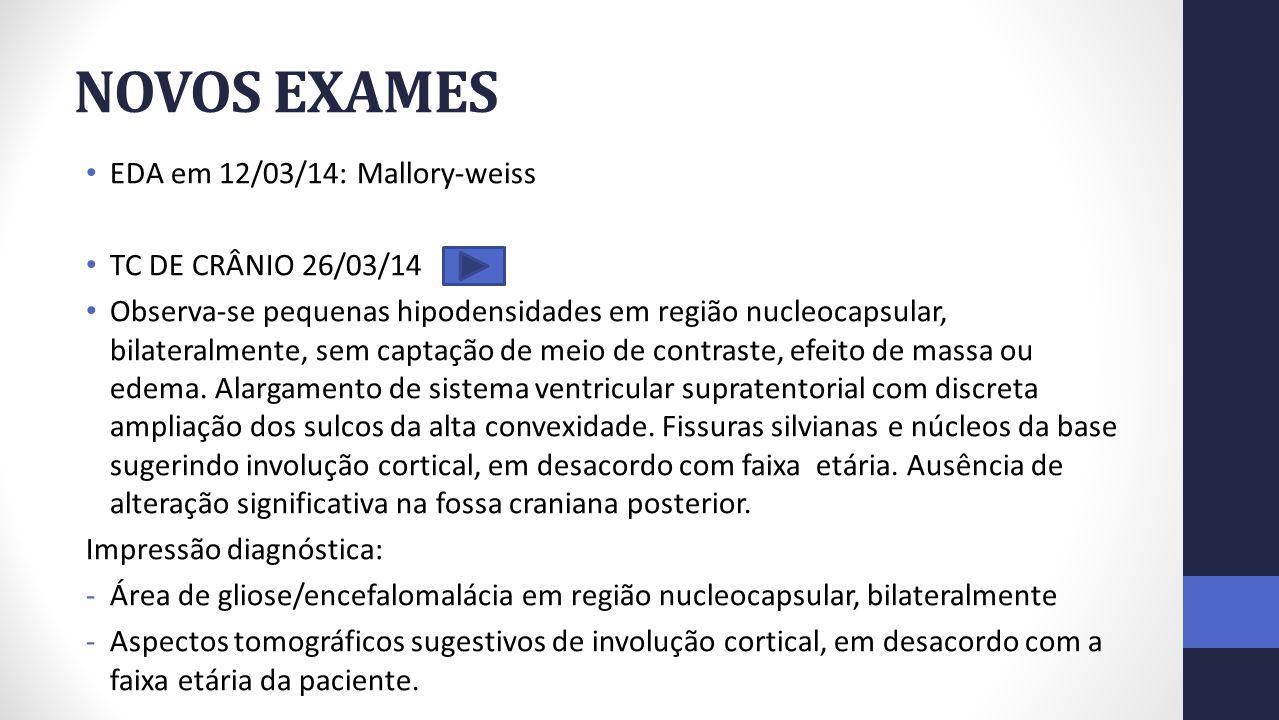 NOVOS EXAMES EDA em 12/03/14: Mallory-weiss TC DE CRÂNIO 26/03/14 Observa-se pequenas hipodensidades em região nucleocapsular, bilateralmente, sem cap