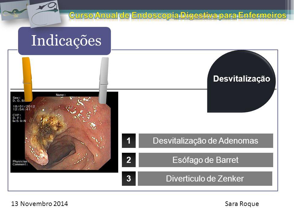 13 Novembro 2014Sara Roque Indicações Desvitalização Diverticulo de Zenker 1 2 3 Desvitalização de Adenomas Esófago de Barret