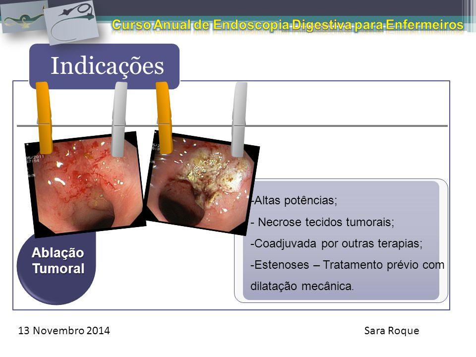 13 Novembro 2014Sara Roque Indicações AblaçãoTumoral -Altas potências; - Necrose tecidos tumorais; -Coadjuvada por outras terapias; -Estenoses – Trata