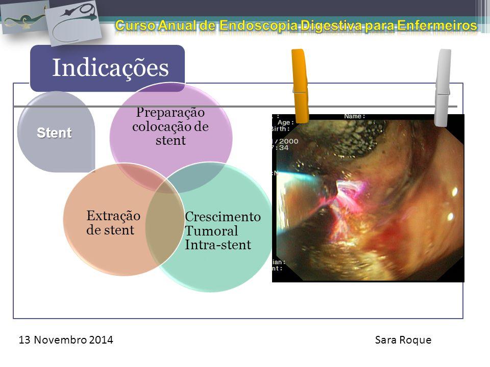 13 Novembro 2014Sara Roque Indicações Stent Preparação colocação de stent Crescimento Tumoral Intra-stent Extração de stent