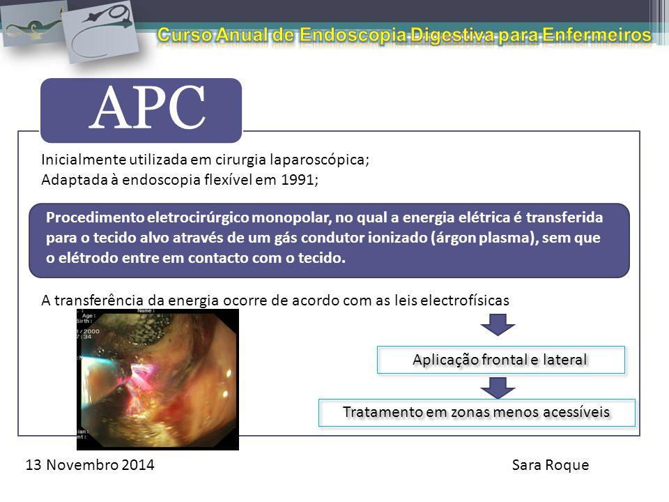 13 Novembro 2014Sara Roque APC Inicialmente utilizada em cirurgia laparoscópica; Adaptada à endoscopia flexível em 1991; A transferência da energia oc