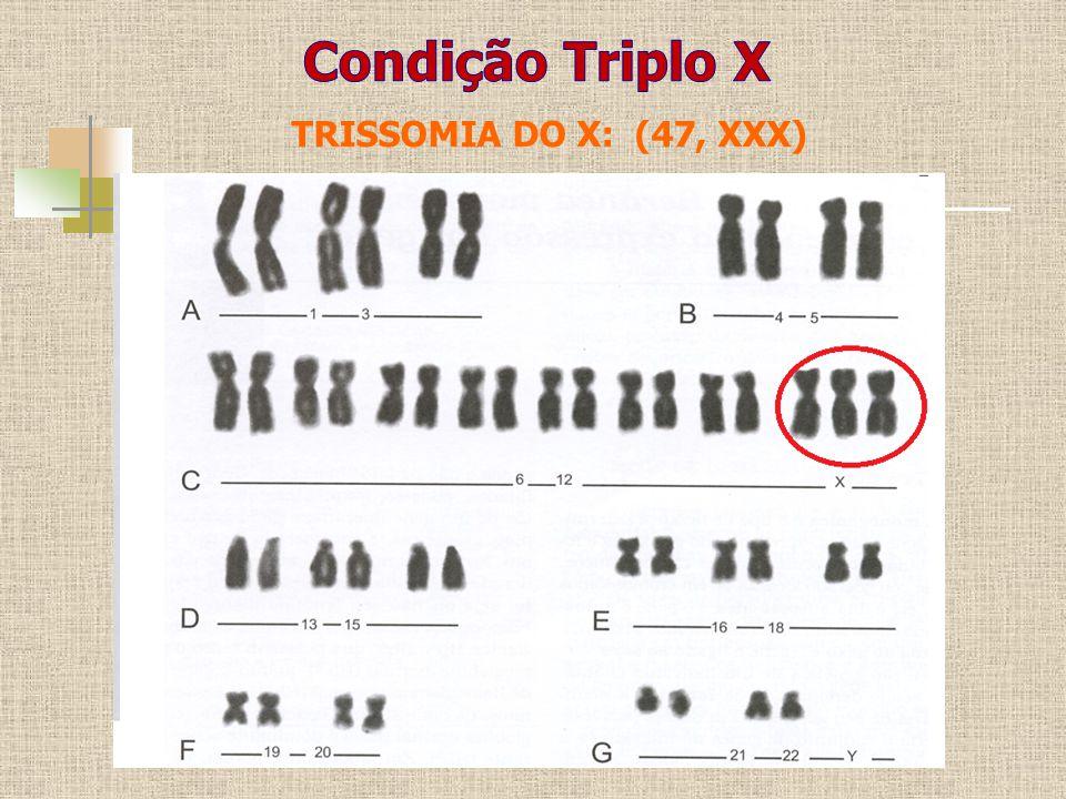 TRISSOMIA DO X: (47, XXX)