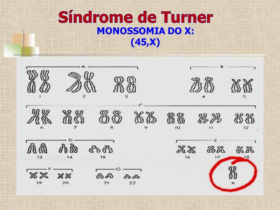 MONOSSOMIA DO X: (45,X)