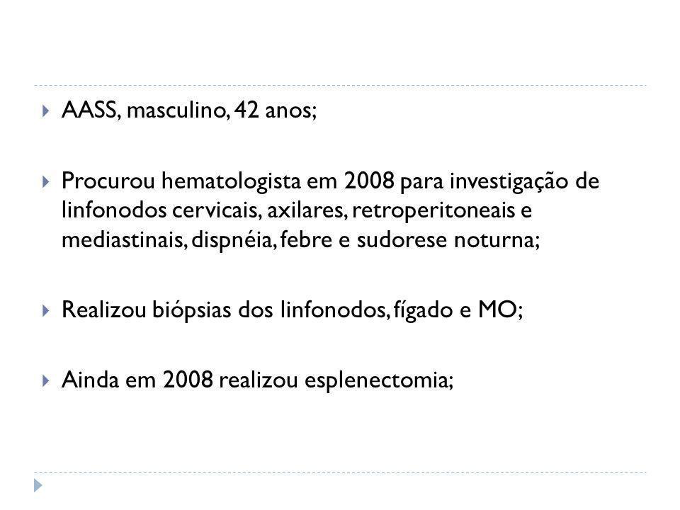  AASS, masculino, 42 anos;  Procurou hematologista em 2008 para investigação de linfonodos cervicais, axilares, retroperitoneais e mediastinais, dis