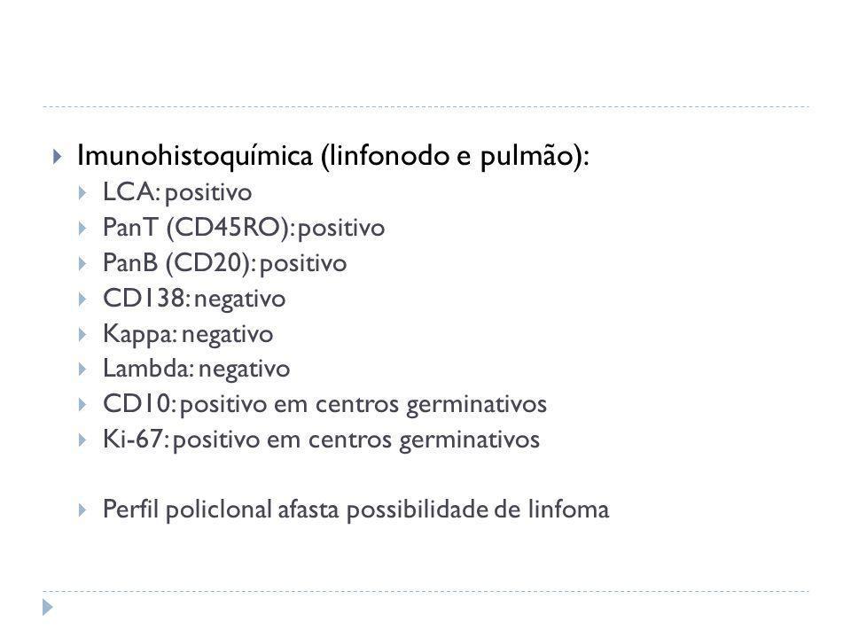  Imunohistoquímica (linfonodo e pulmão):  LCA: positivo  PanT (CD45RO): positivo  PanB (CD20): positivo  CD138: negativo  Kappa: negativo  Lamb