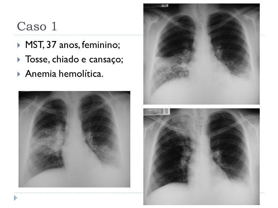 Caso 1  MST, 37 anos, feminino;  Tosse, chiado e cansaço;  Anemia hemolítica.