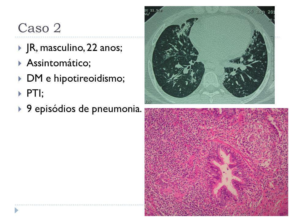 Caso 2  JR, masculino, 22 anos;  Assintomático;  DM e hipotireoidismo;  PTI;  9 episódios de pneumonia.