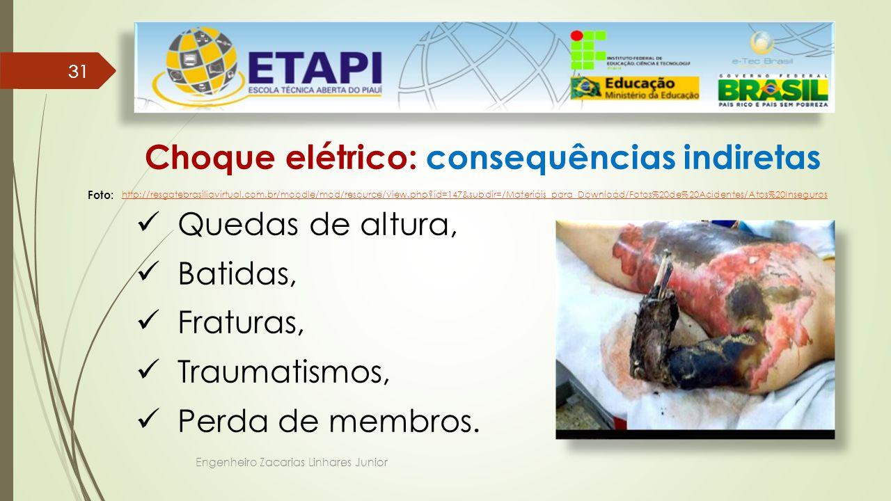 Engenheiro Zacarias Linhares Junior 31 Choque elétrico: consequências indiretas Quedas de altura, Batidas, Fraturas, Traumatismos, Perda de membros.