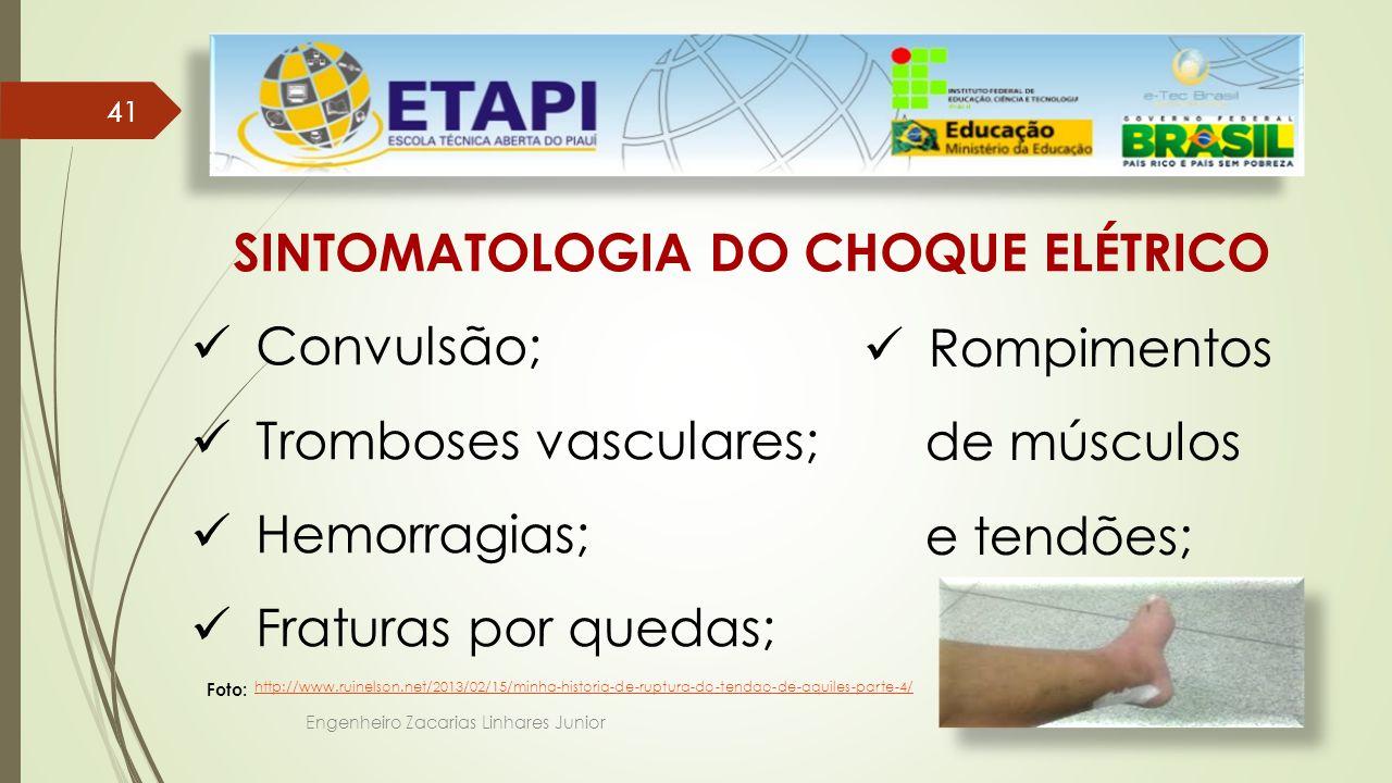 Engenheiro Zacarias Linhares Junior 41 SINTOMATOLOGIA DO CHOQUE ELÉTRICO Convulsão; Tromboses vasculares; Hemorragias; Fraturas por quedas; Rompimentos de músculos e tendões; http://www.ruinelson.net/2013/02/15/minha-historia-de-ruptura-do-tendao-de-aquiles-parte-4/ Foto:
