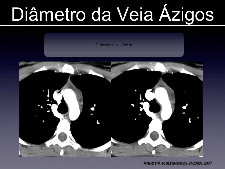 Diâmetro da Veia Ázigos Imagens em TEP Araoz PA et al.Radiology.242:889;2007 Diâmetro > 10mm