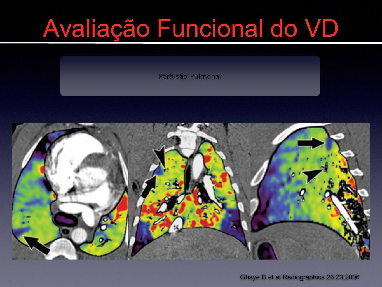Avaliação Funcional do VD Imagens em TEP Ghaye B et al.Radiographics.26:23;2006 Perfusão Pulmonar
