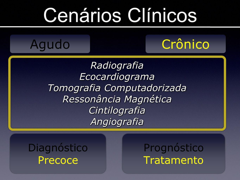 Cenários Clínicos Agudo Crônico RadiografiaEcocardiograma Tomografia Computadorizada Ressonância Magnética CintilografiaAngiografiaRadiografiaEcocardi