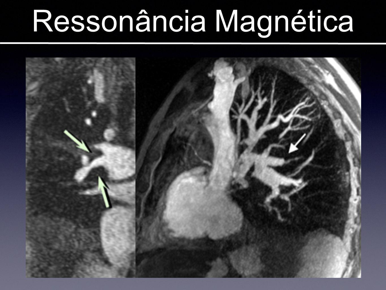 Ressonância Magnética Imagens em TEP