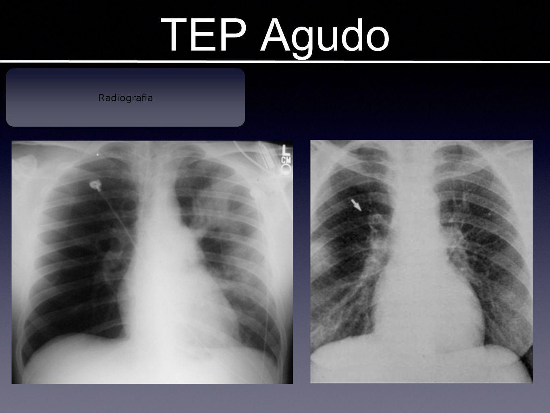 TEP Agudo Radiografia