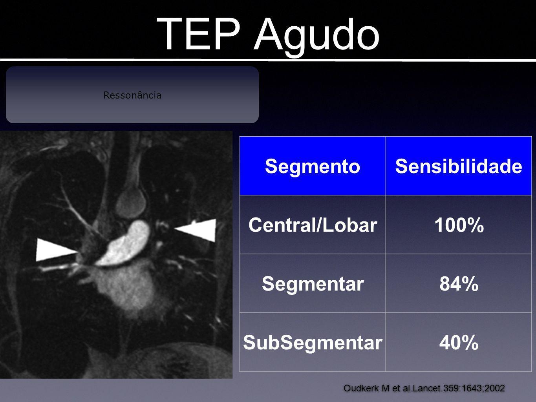 TEP Agudo Ressonância Oudkerk M et al.Lancet.359:1643;2002 SegmentoSensibilidade Central/Lobar100% Segmentar84% SubSegmentar40%