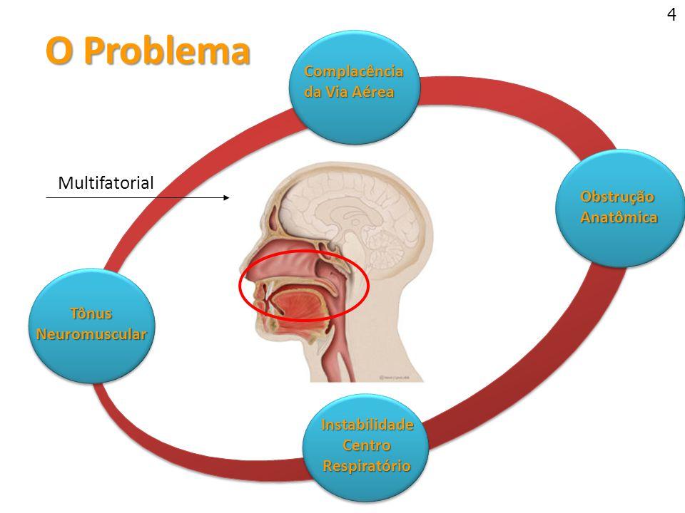 O Problema O Problema TônusNeuromuscular Complacência da Via Aérea Obstrução Anatômica Anatômica InstabilidadeCentroRespiratório Multifatorial 4