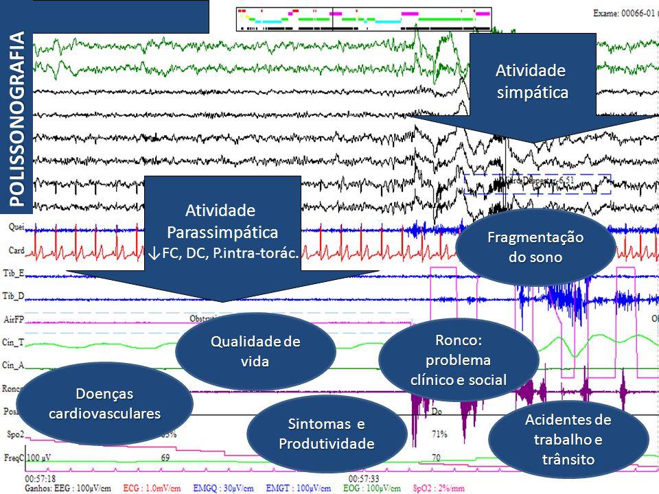Atividade Parassimpática ↓FC, DC, P.intra-torác.
