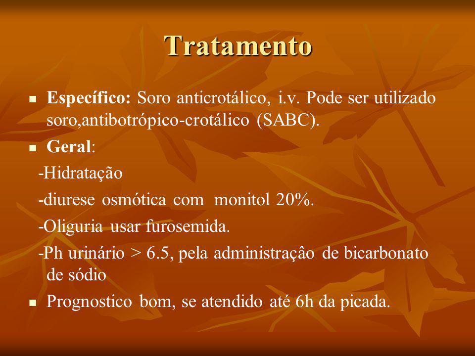 Tratamento Específico: Soro anticrotálico, i.v.