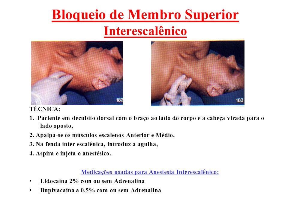 Bloqueio de Membro Superior Interescalênico TÉCNICA: 1. Paciente em decubito dorsal com o braço ao lado do corpo e a cabeça virada para o lado oposto,