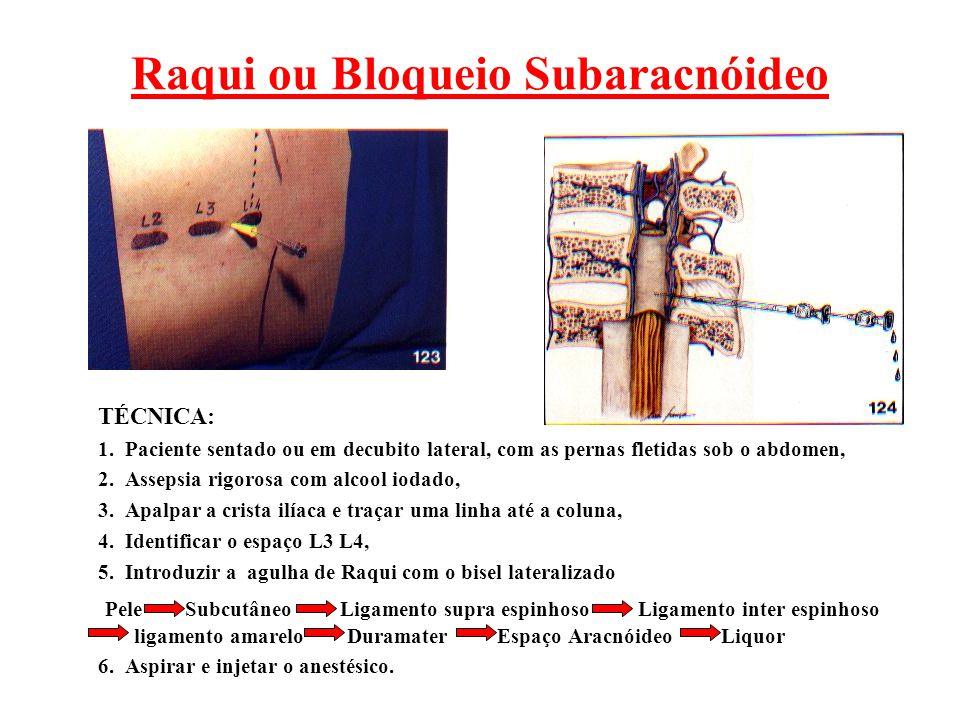Raqui ou Bloqueio Subaracnóideo TÉCNICA: 1. Paciente sentado ou em decubito lateral, com as pernas fletidas sob o abdomen, 2. Assepsia rigorosa com al