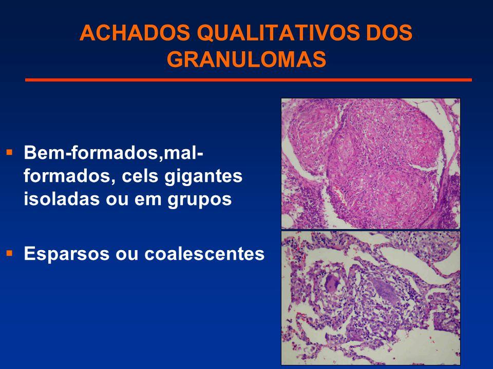 ACHADOS QUALITATIVOS DOS GRANULOMAS  Bem-formados,mal- formados, cels gigantes isoladas ou em grupos  Esparsos ou coalescentes