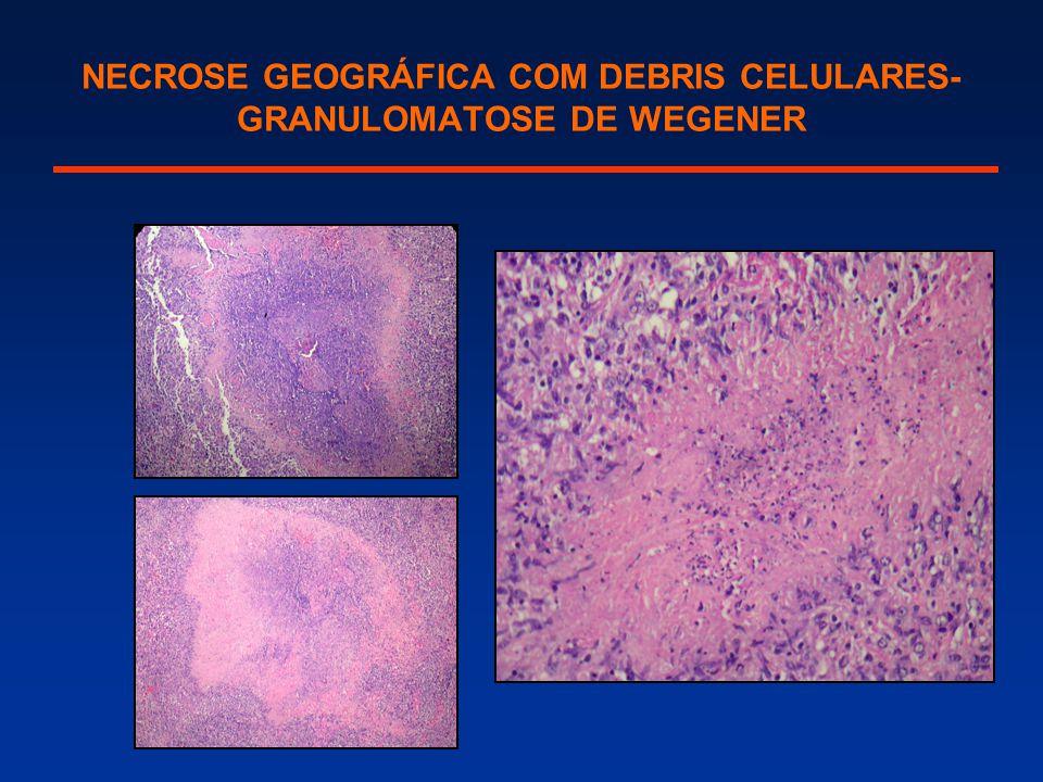 NECROSE GEOGRÁFICA COM DEBRIS CELULARES- GRANULOMATOSE DE WEGENER