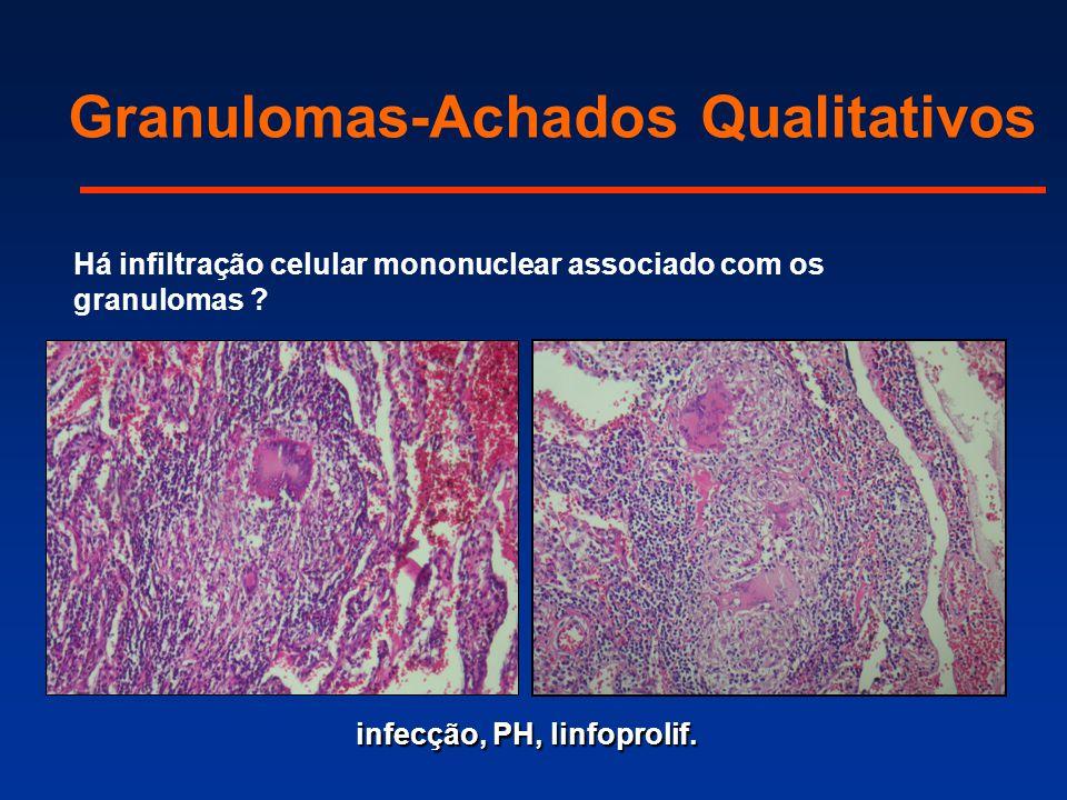 Há infiltração celular mononuclear associado com os granulomas ? infecção, PH, linfoprolif. Granulomas-Achados Qualitativos