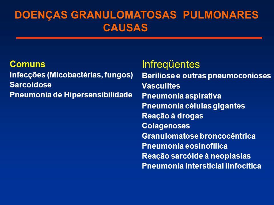 Comuns Infecções (Micobactérias, fungos) Sarcoidose Pneumonia de Hipersensibilidade Infreqüentes Beriliose e outras pneumoconioses Vasculites Pneumoni
