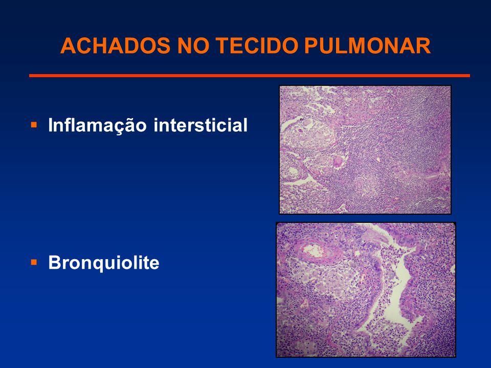 ACHADOS NO TECIDO PULMONAR  Inflamação intersticial  Bronquiolite