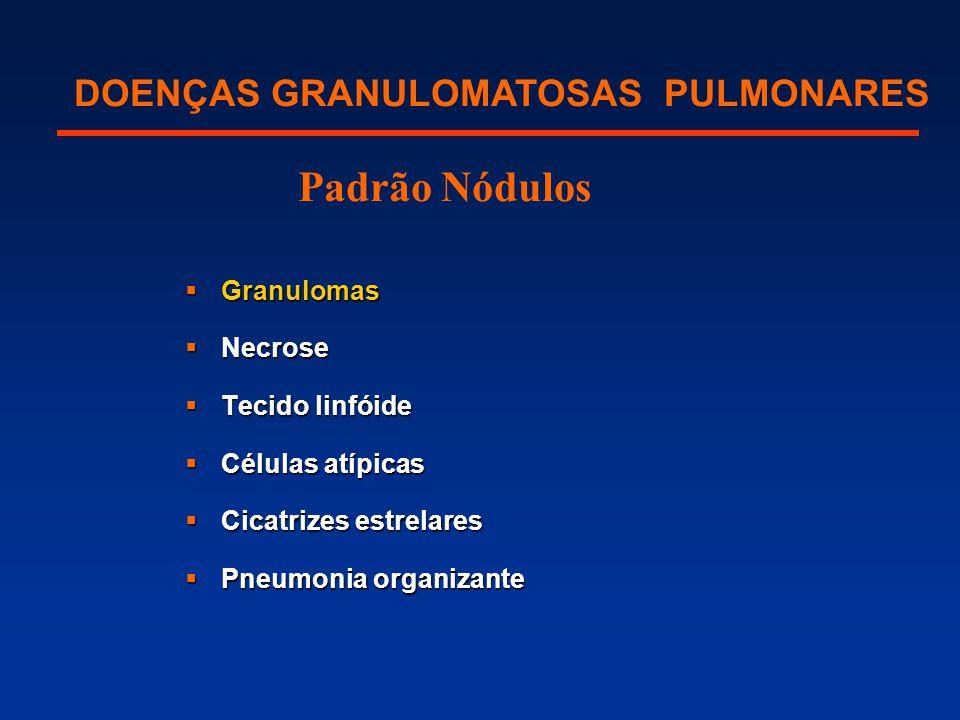  Granulomas  Necrose  Tecido linfóide  Células atípicas  Cicatrizes estrelares  Pneumonia organizante DOENÇAS GRANULOMATOSAS PULMONARES Padrão N