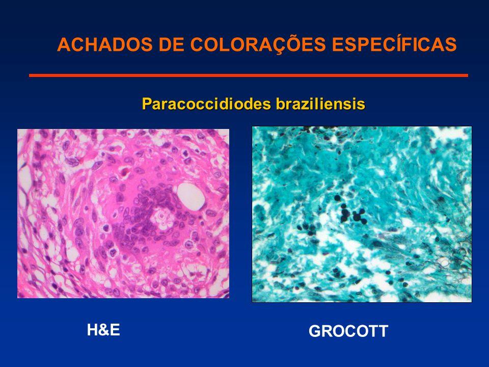 ACHADOS DE COLORAÇÕES ESPECÍFICAS GROCOTT Paracoccidiodes braziliensis H&E