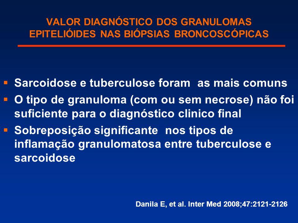 VALOR DIAGNÓSTICO DOS GRANULOMAS EPITELIÓIDES NAS BIÓPSIAS BRONCOSCÓPICAS  Sarcoidose e tuberculose foram as mais comuns  O tipo de granuloma (com o