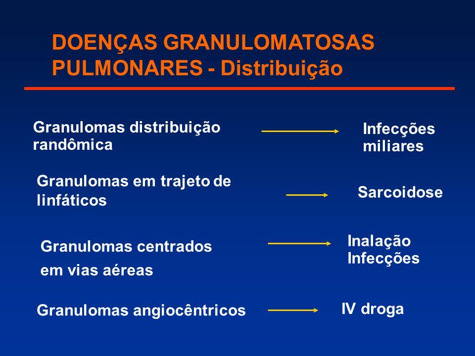 Granulomas centrados em vias aéreas Granulomas em trajeto de linfáticos Granulomas angiocêntricos Granulomas distribuição randômica Inalação Infecções