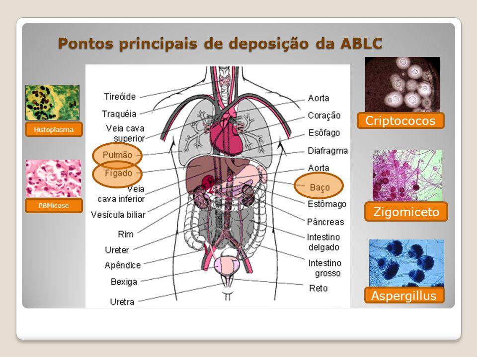 Pontos principais de deposição da ABLC Pontos principais de deposição da ABLC Zigomiceto Criptococos Aspergillus Histoplasma PBMicose