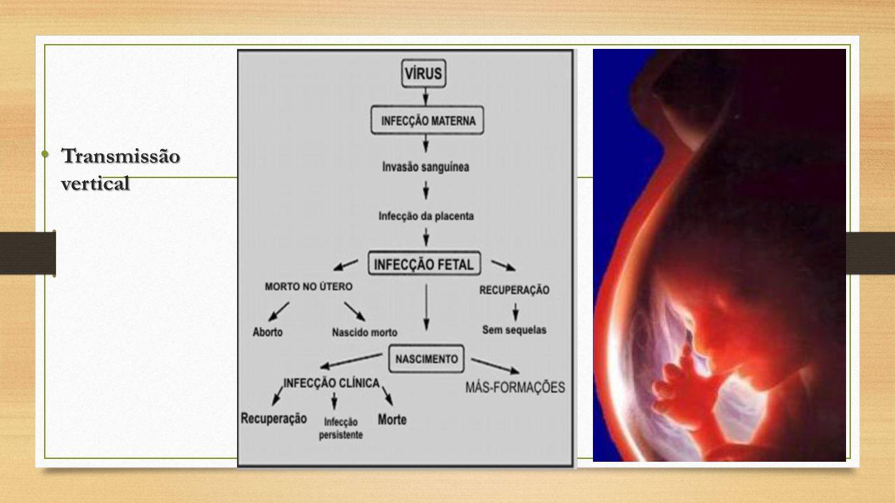 Formação de corpúsculos de inclusão Acúmulo proteínas (antígenos) virais Corpúsculos de inclusão Raiva