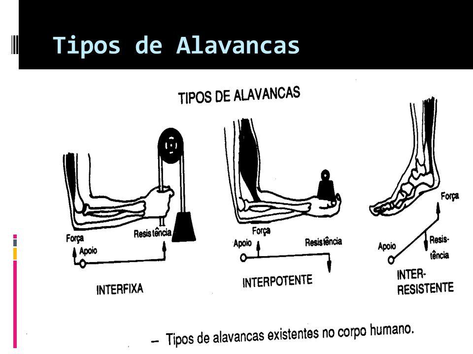 Tipos de Alavancas