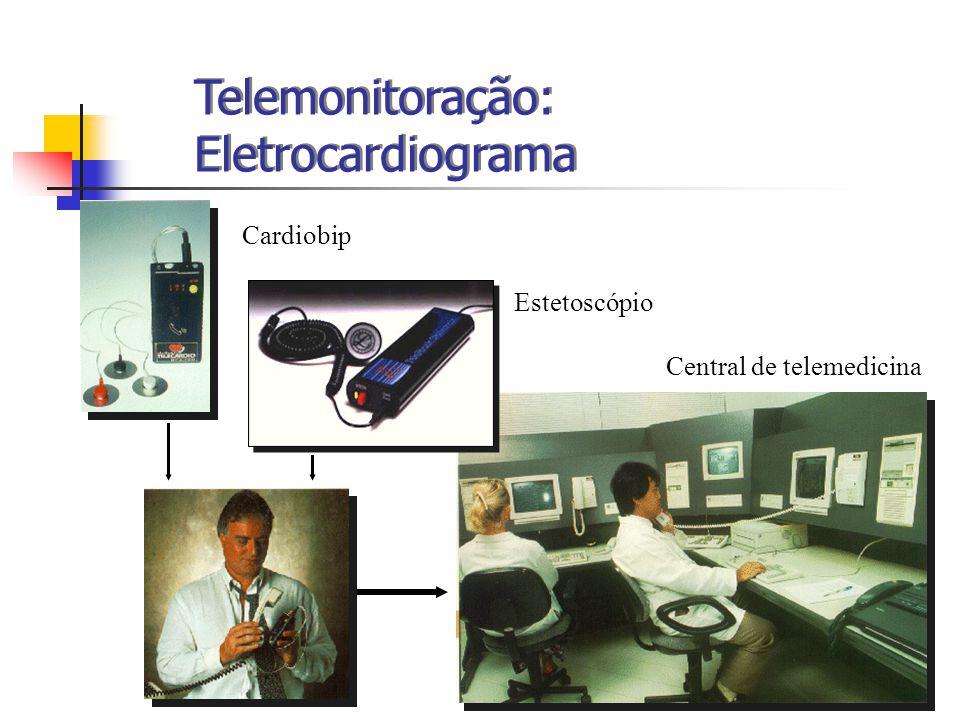 Central de telemedicina Telemonitoração: Eletrocardiograma Cardiobip Estetoscópio