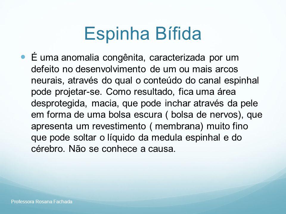 Professora Rosana Fachada Espinha Bífida É uma anomalia congênita, caracterizada por um defeito no desenvolvimento de um ou mais arcos neurais, atravé